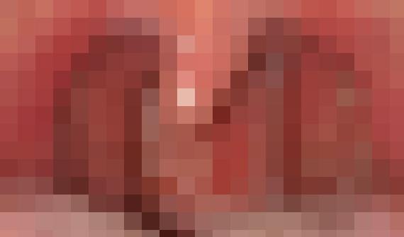 急性扁桃炎のモザイク画像
